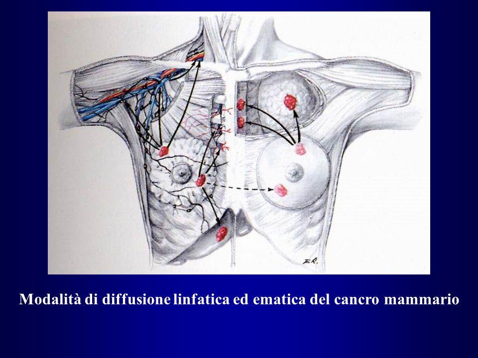 Modalità di diffusione linfatica ed ematica del cancro mammario