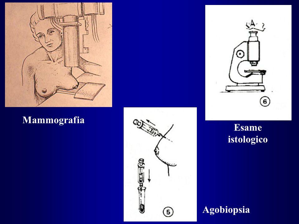 Mammografia Esame istologico Agobiopsia