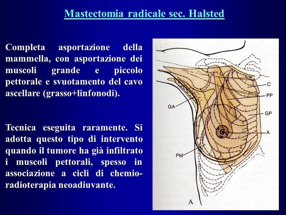 Mastectomia radicale sec. Halsted