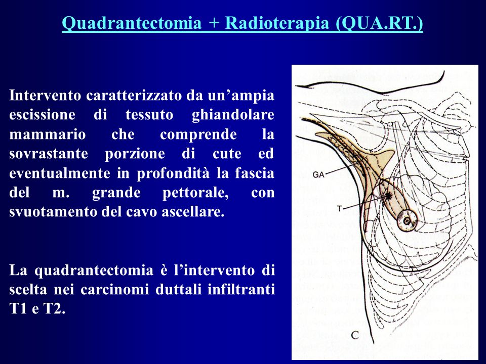 Quadrantectomia + Radioterapia (QUA.RT.)
