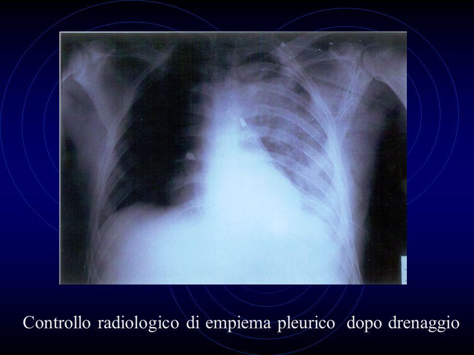 Controllo radiologico di empiema pleurico dopo drenaggio