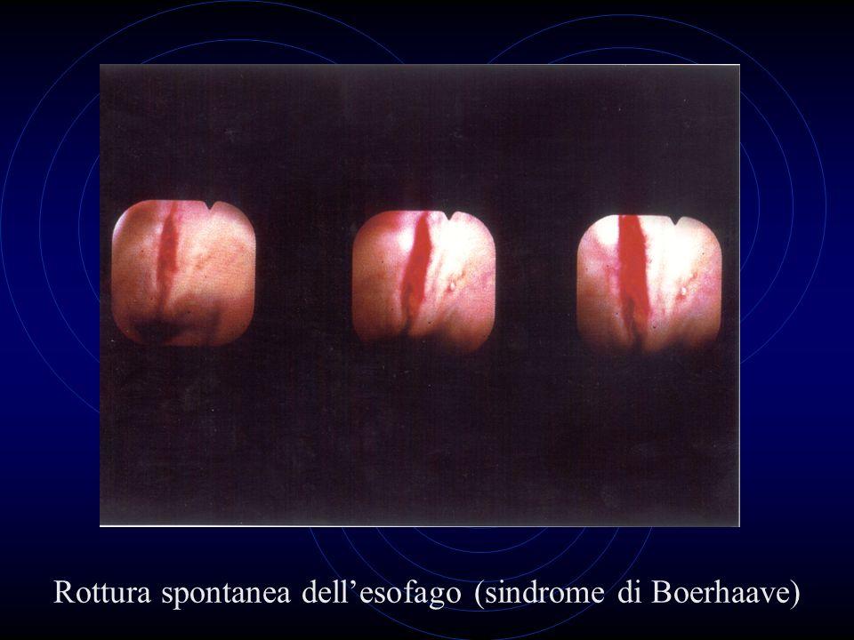 Rottura spontanea dell'esofago (sindrome di Boerhaave)