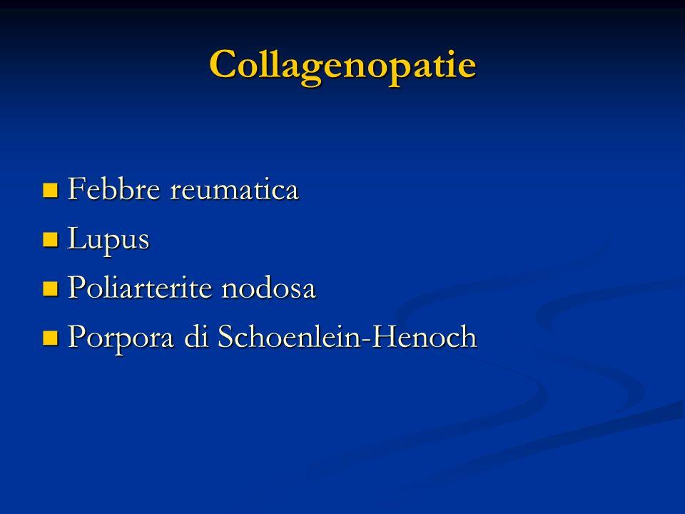 Collagenopatie Febbre reumatica Lupus Poliarterite nodosa