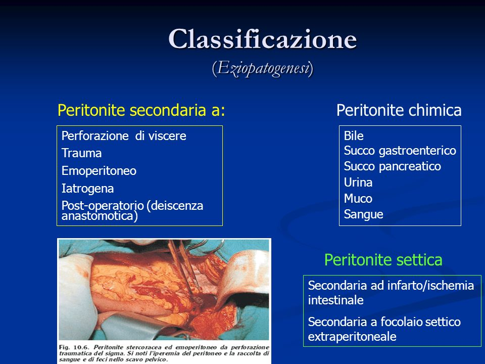 Classificazione (Eziopatogenesi)
