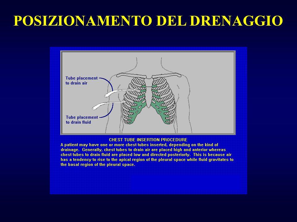 POSIZIONAMENTO DEL DRENAGGIO