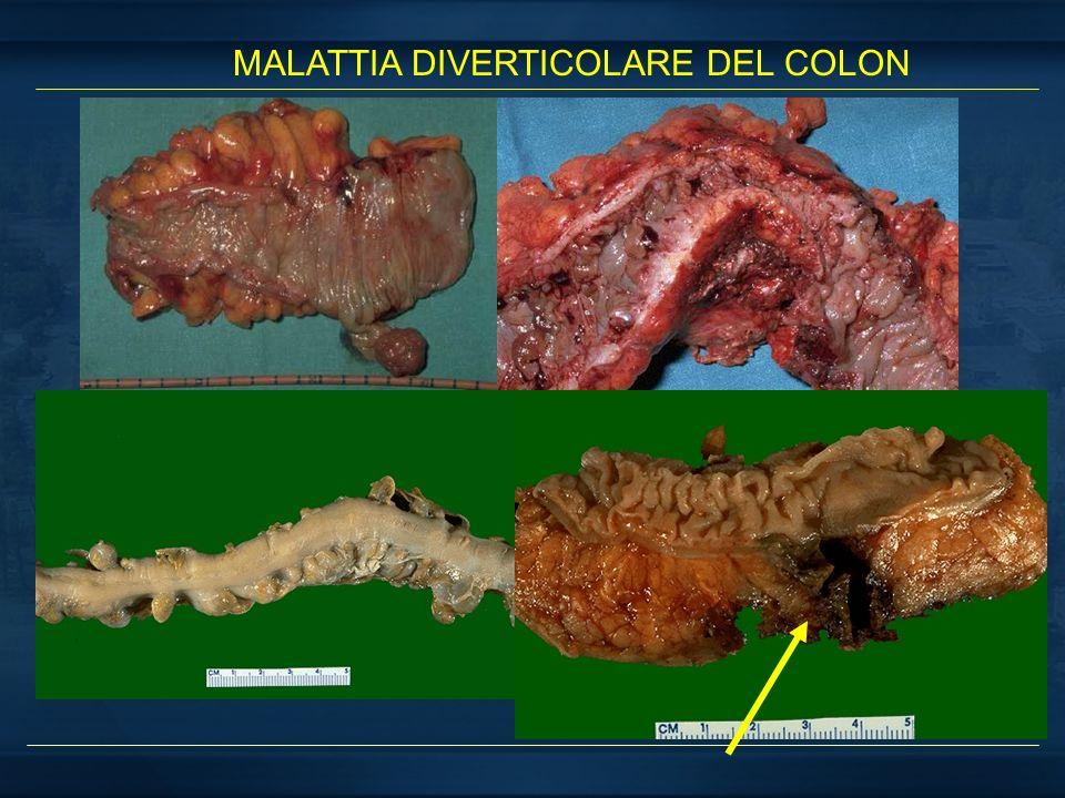 MALATTIA DIVERTICOLARE DEL COLON