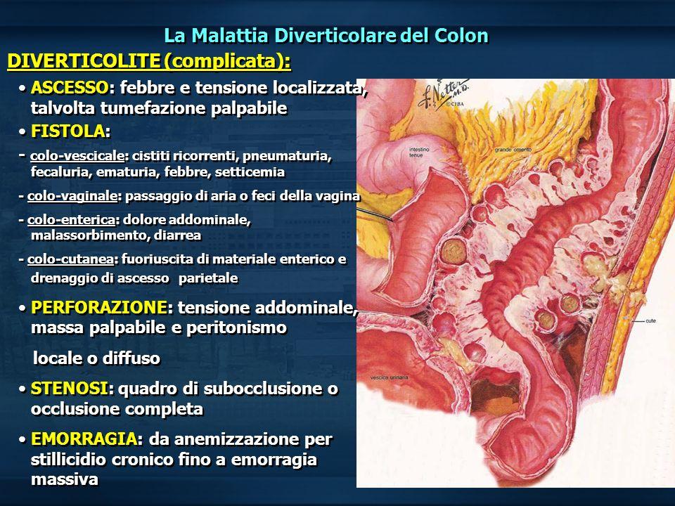 La Malattia Diverticolare del Colon DIVERTICOLITE (complicata):