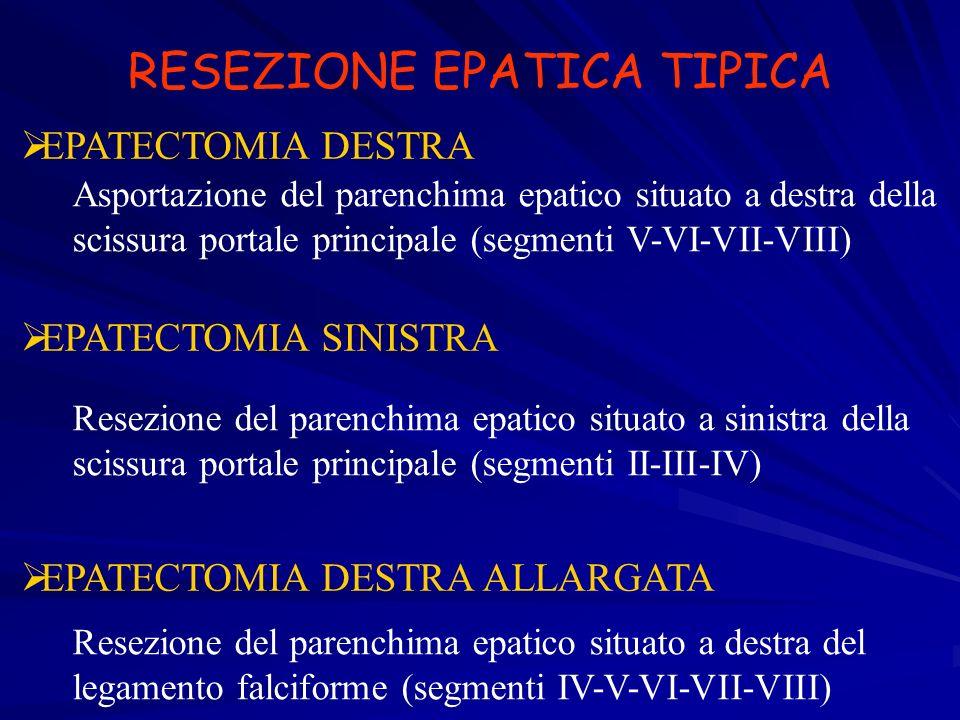 RESEZIONE EPATICA TIPICA