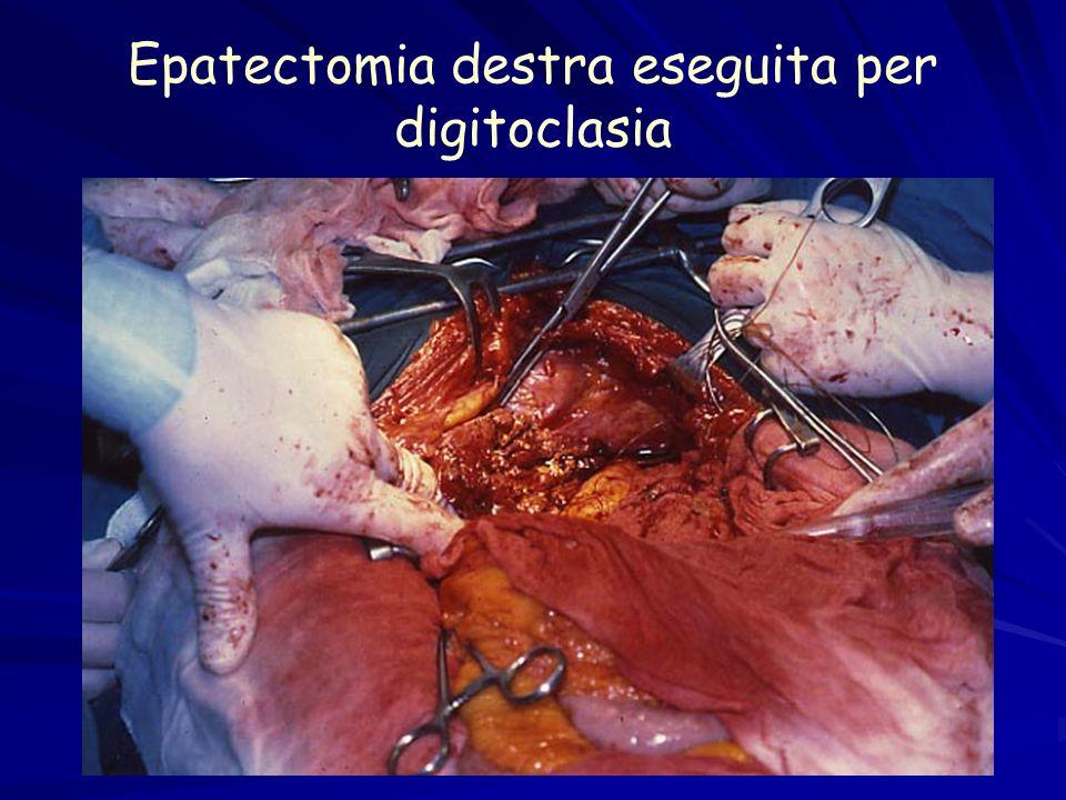 Epatectomia destra eseguita per digitoclasia