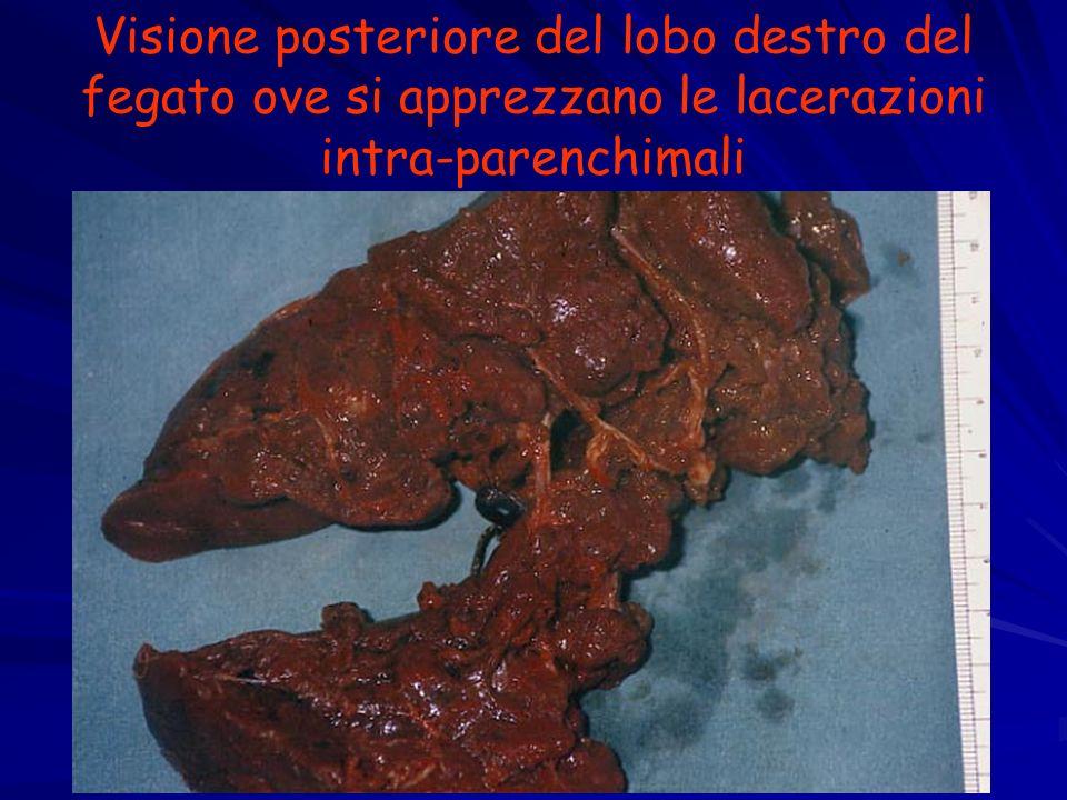 Visione posteriore del lobo destro del fegato ove si apprezzano le lacerazioni intra-parenchimali