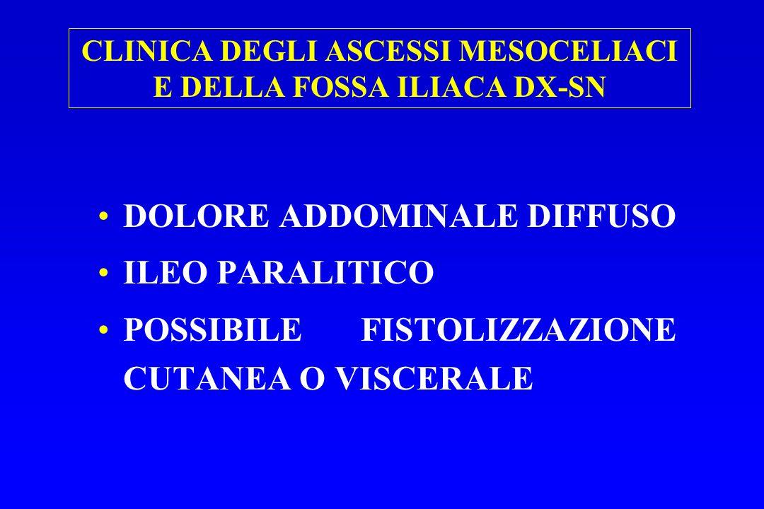 CLINICA DEGLI ASCESSI MESOCELIACI E DELLA FOSSA ILIACA DX-SN