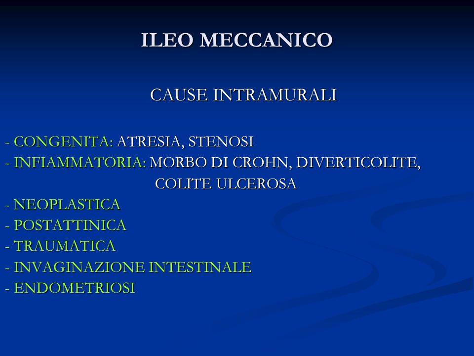 ILEO MECCANICO CAUSE INTRAMURALI - CONGENITA: ATRESIA, STENOSI