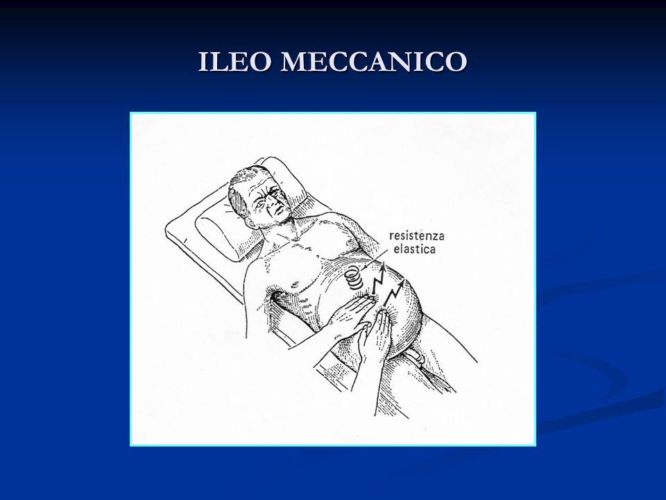 ILEO MECCANICO