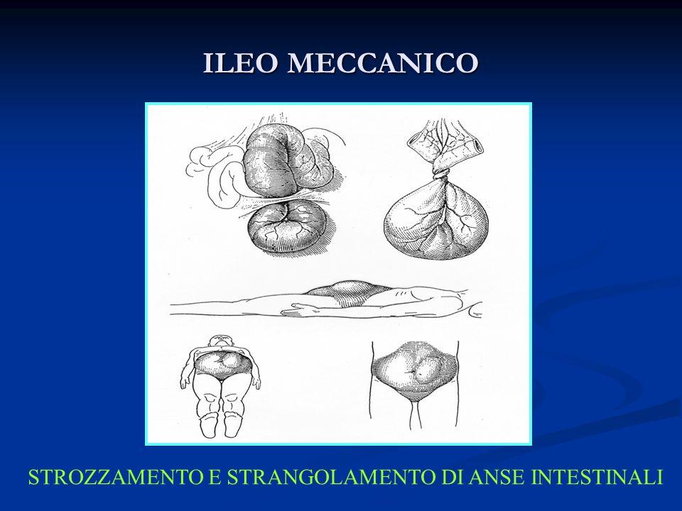 STROZZAMENTO E STRANGOLAMENTO DI ANSE INTESTINALI