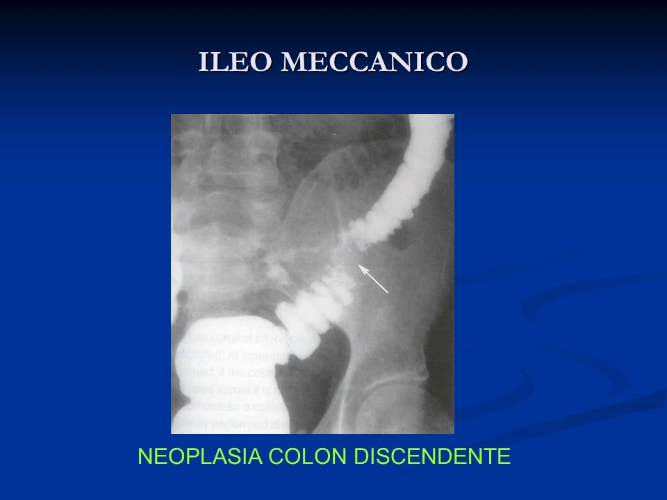NEOPLASIA COLON DISCENDENTE