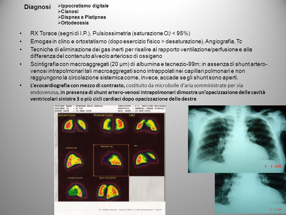 Diagnosi Ippocratismo digitale. Cianosi. Dispnea e Platipnea. Ortodeossia. RX Torace (segni di I.P.), Pulsiossimetria (saturazione O2 < 95%)