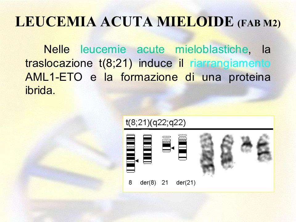 LEUCEMIA ACUTA MIELOIDE (FAB M2)