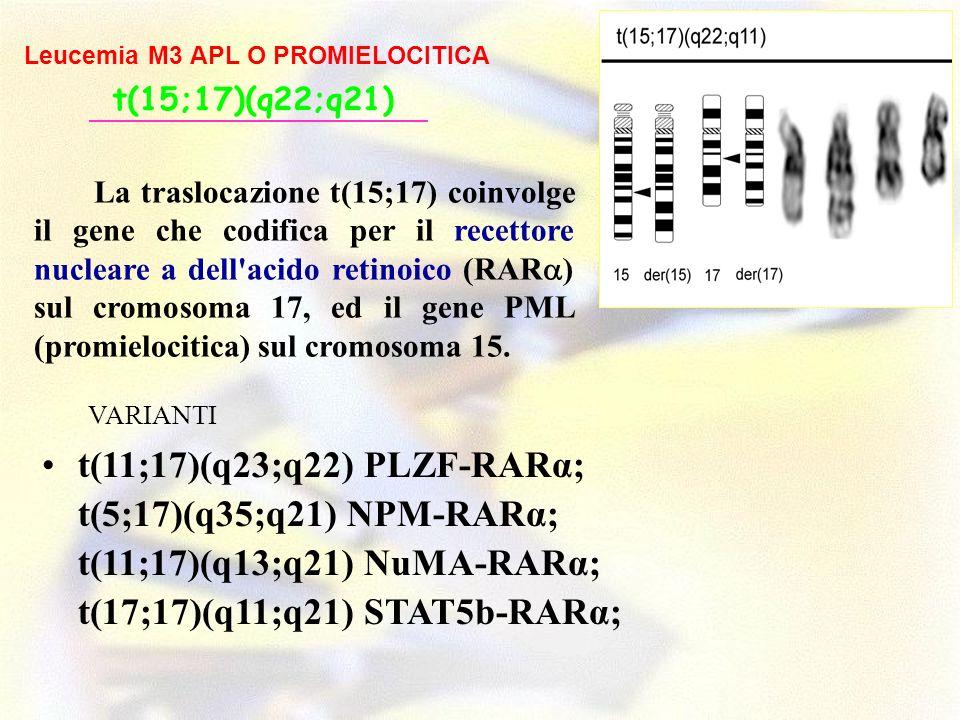 t(17;17)(q11;q21) STAT5b-RARα;