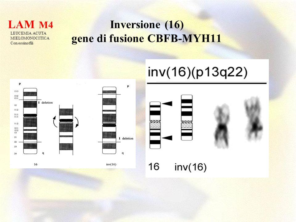 Inversione (16) gene di fusione CBFB-MYH11