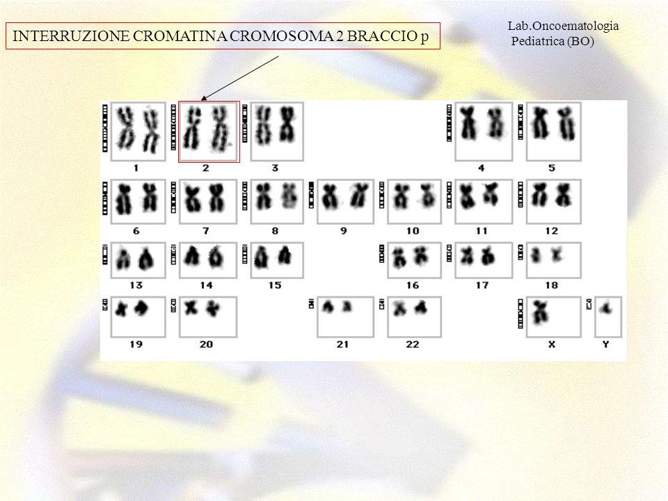 INTERRUZIONE CROMATINA CROMOSOMA 2 BRACCIO p