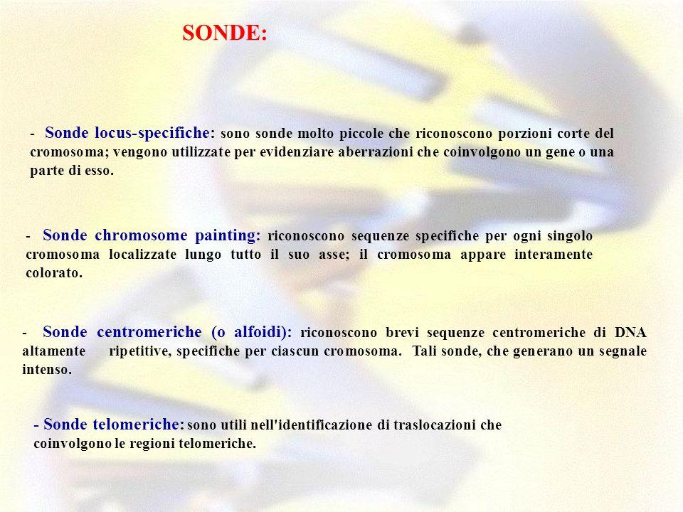 SONDE: