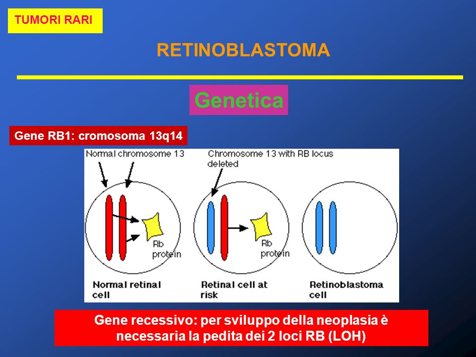 TUMORI RARI RETINOBLASTOMA. Genetica. Gene RB1: cromosoma 13q14.