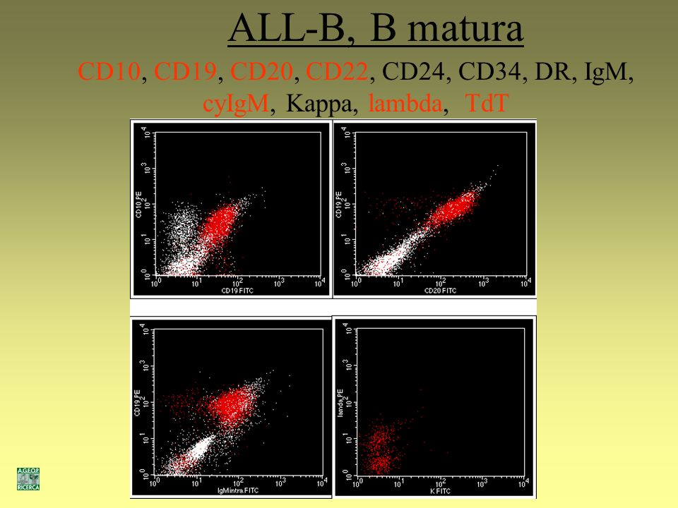 CD10, CD19, CD20, CD22, CD24, CD34, DR, IgM, cyIgM, Kappa, lambda, TdT