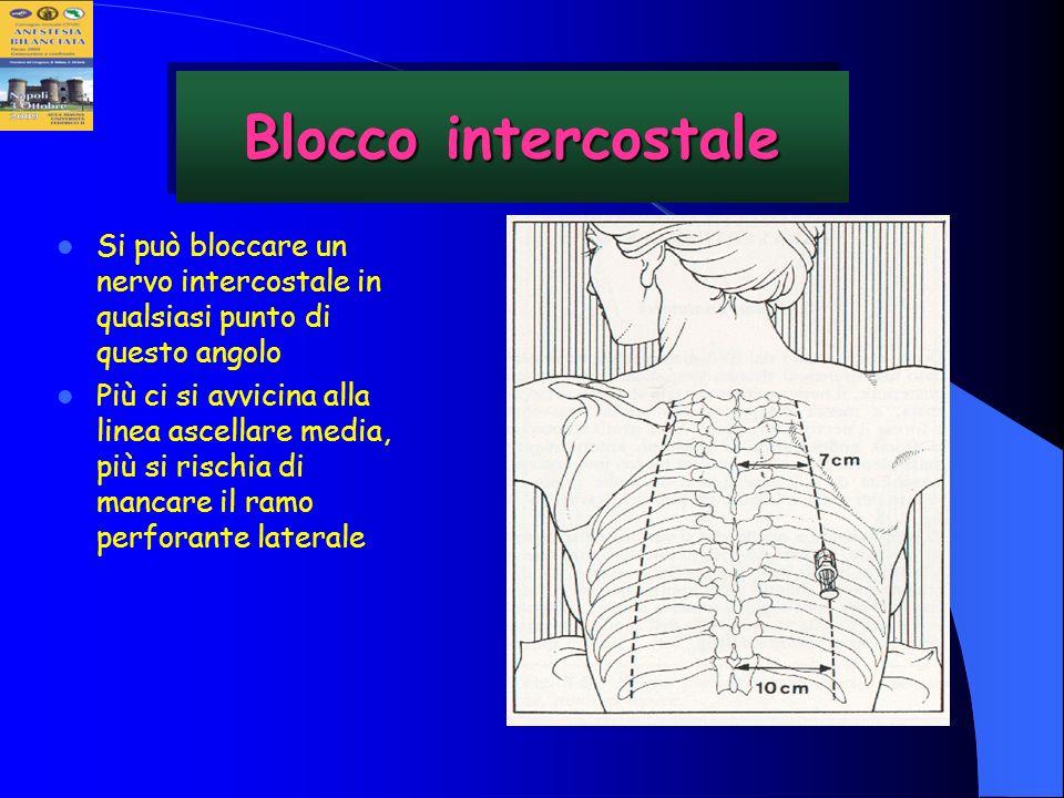 Blocco intercostaleSi può bloccare un nervo intercostale in qualsiasi punto di questo angolo.