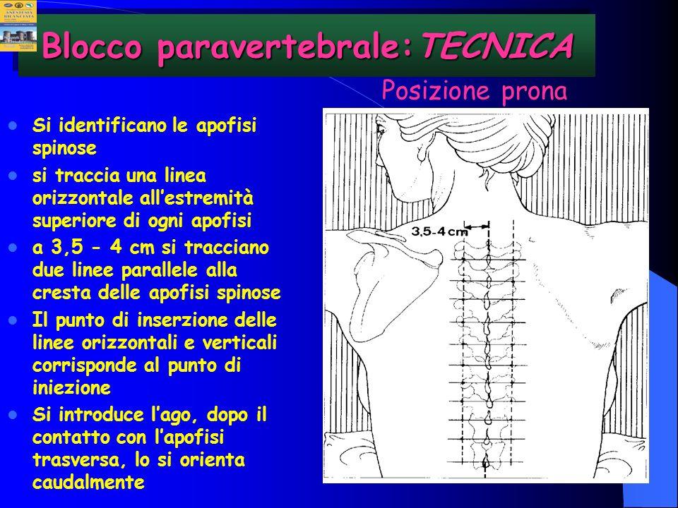 Blocco paravertebrale:TECNICA