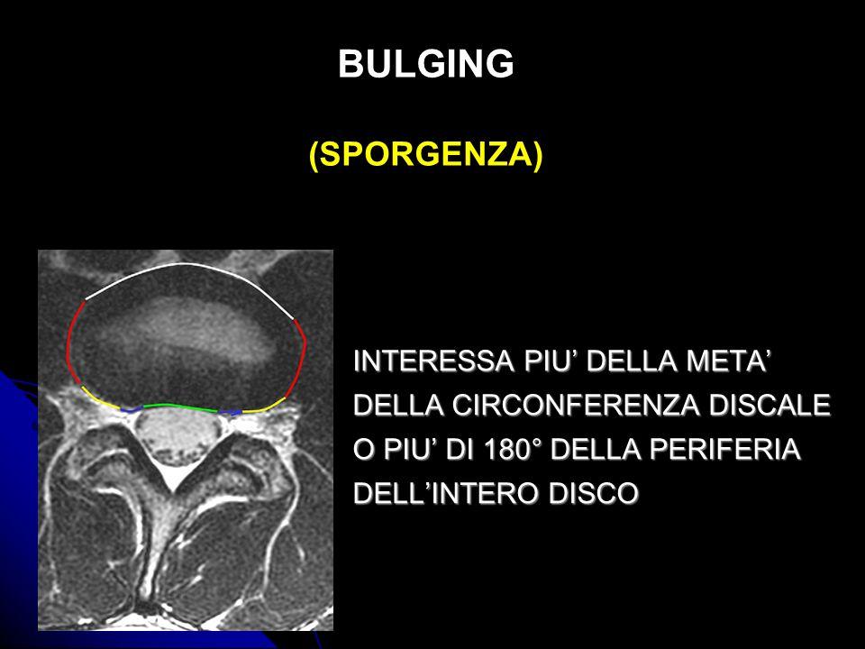 BULGING (SPORGENZA) INTERESSA PIU' DELLA META'