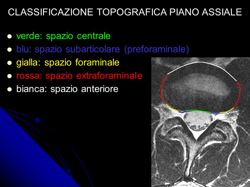 CLASSIFICAZIONE TOPOGRAFICA PIANO ASSIALE