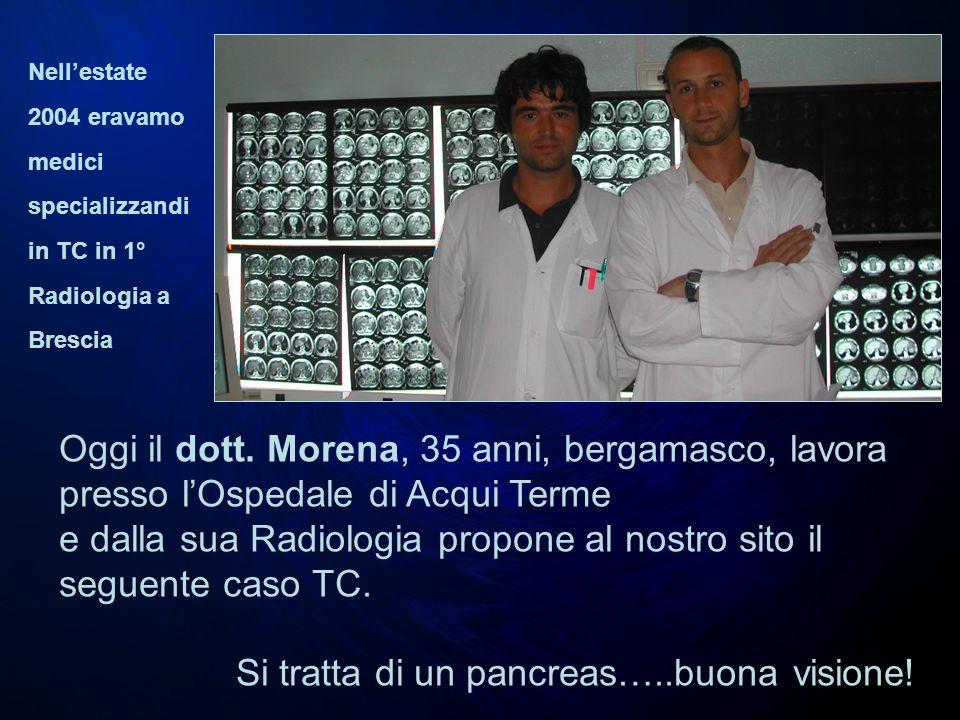 e dalla sua Radiologia propone al nostro sito il seguente caso TC.