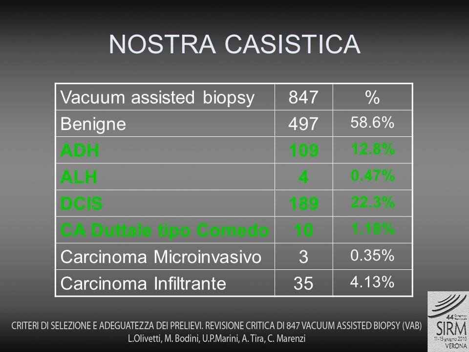 NOSTRA CASISTICA Vacuum assisted biopsy 847 % Benigne 497 ADH 109 ALH