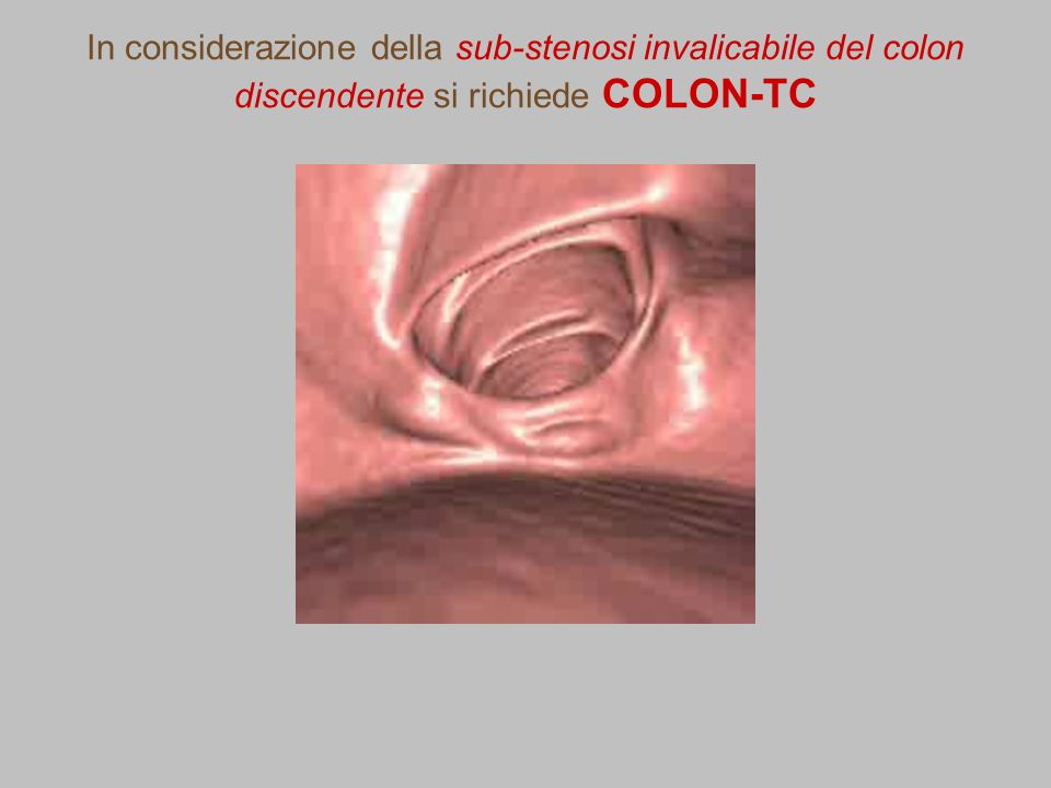 In considerazione della sub-stenosi invalicabile del colon discendente si richiede COLON-TC