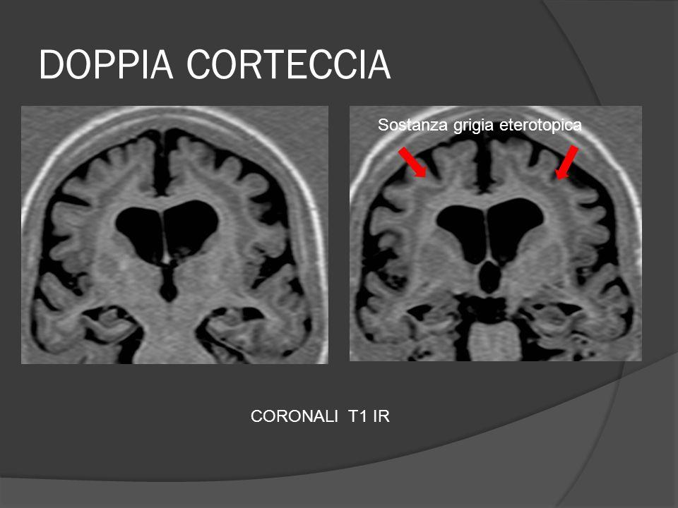 DOPPIA CORTECCIA Sostanza grigia eterotopica CORONALI T1 IR
