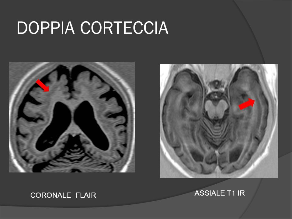 DOPPIA CORTECCIA ASSIALE T1 IR CORONALE FLAIR