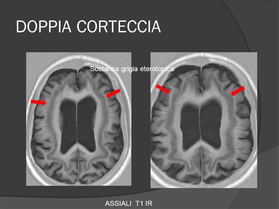 DOPPIA CORTECCIA Sostanza grigia eterotopica ASSIALI T1 IR