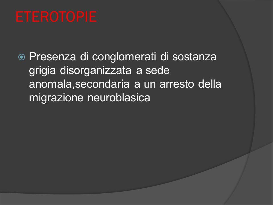 ETEROTOPIE Presenza di conglomerati di sostanza grigia disorganizzata a sede anomala,secondaria a un arresto della migrazione neuroblasica.