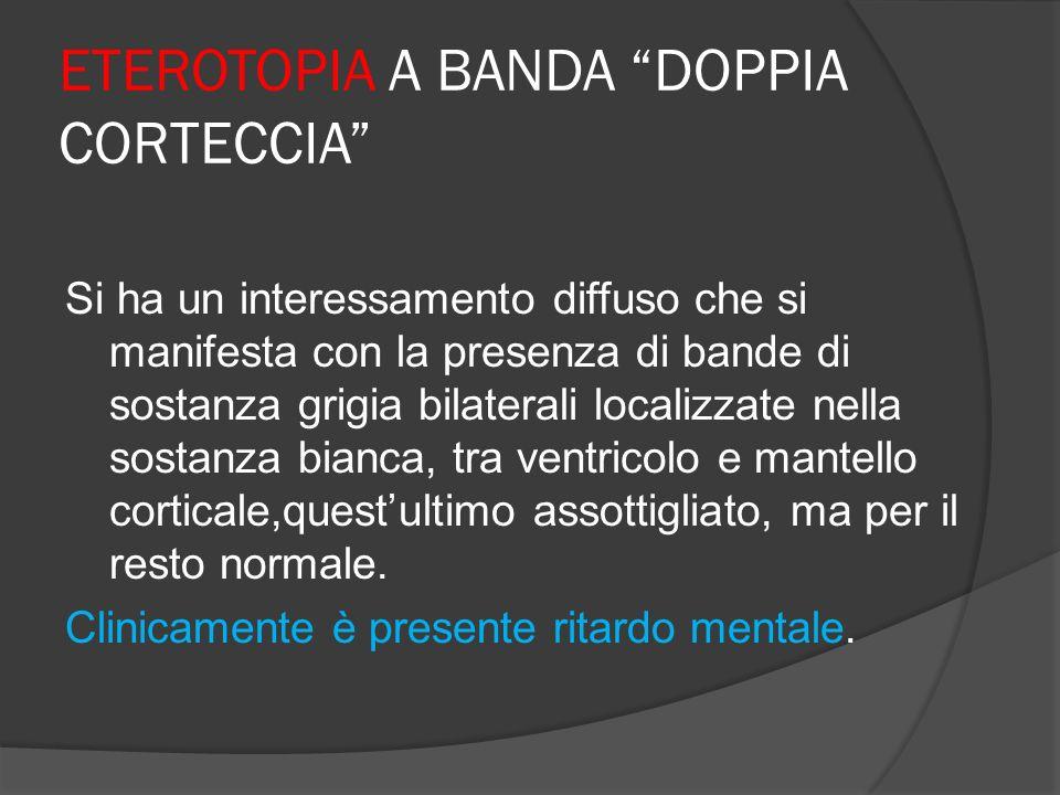 ETEROTOPIA A BANDA DOPPIA CORTECCIA