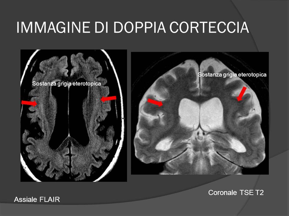 IMMAGINE DI DOPPIA CORTECCIA