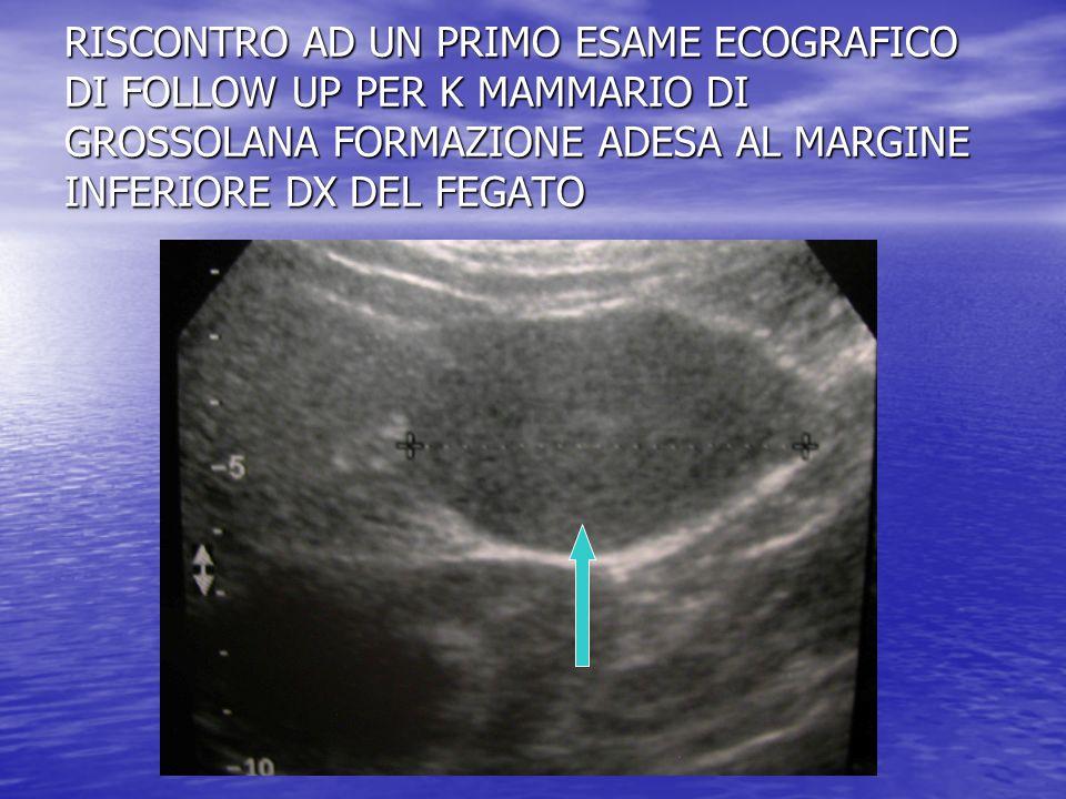 RISCONTRO AD UN PRIMO ESAME ECOGRAFICO DI FOLLOW UP PER K MAMMARIO DI GROSSOLANA FORMAZIONE ADESA AL MARGINE INFERIORE DX DEL FEGATO