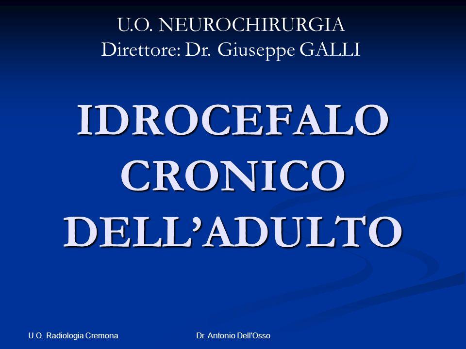 IDROCEFALO CRONICO DELL'ADULTO