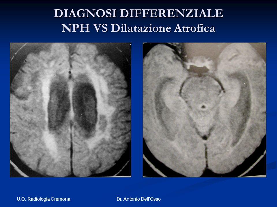 DIAGNOSI DIFFERENZIALE NPH VS Dilatazione Atrofica