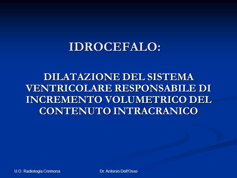 IDROCEFALO: DILATAZIONE DEL SISTEMA VENTRICOLARE RESPONSABILE DI INCREMENTO VOLUMETRICO DEL CONTENUTO INTRACRANICO.