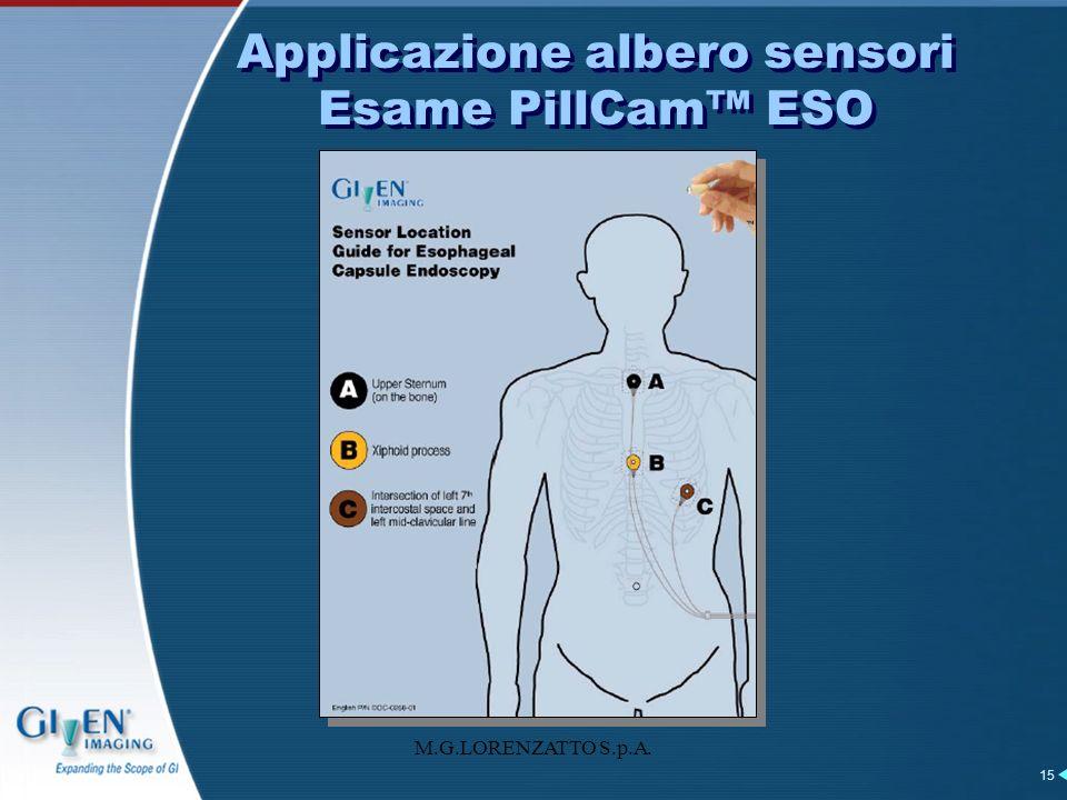 Applicazione albero sensori Esame PillCam™ ESO