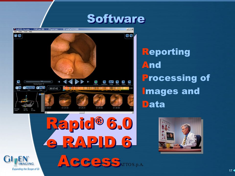 Rapid® 6.0 e RAPID 6 Access Software Reporting And Processing of
