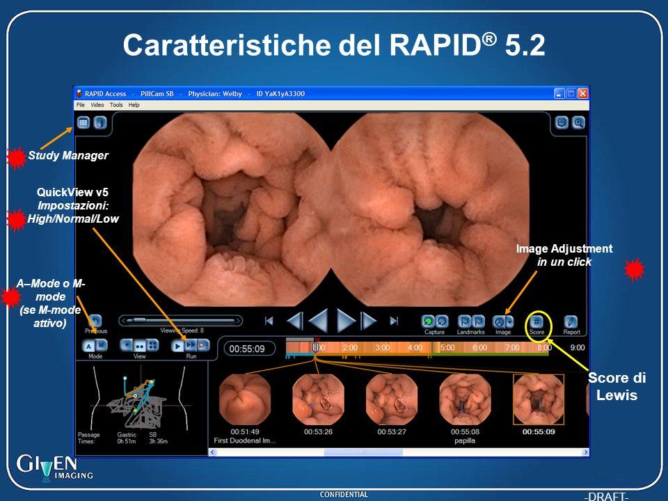 Caratteristiche del RAPID® 5.2