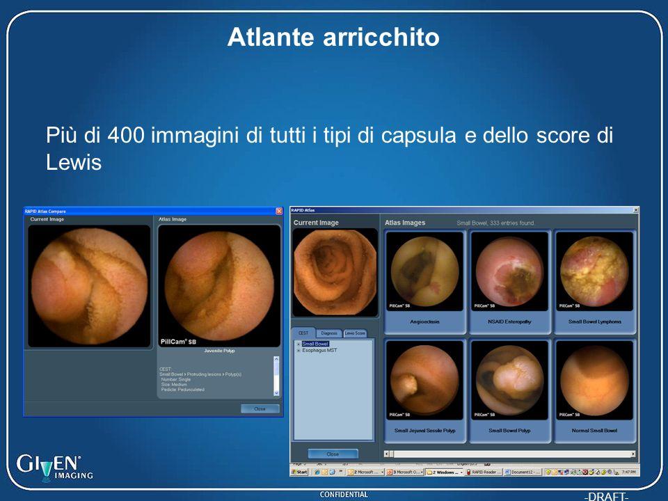 Atlante arricchito Più di 400 immagini di tutti i tipi di capsula e dello score di Lewis