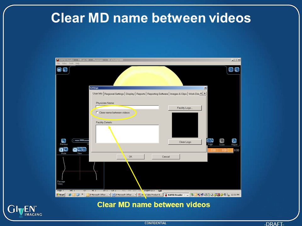 Clear MD name between videos