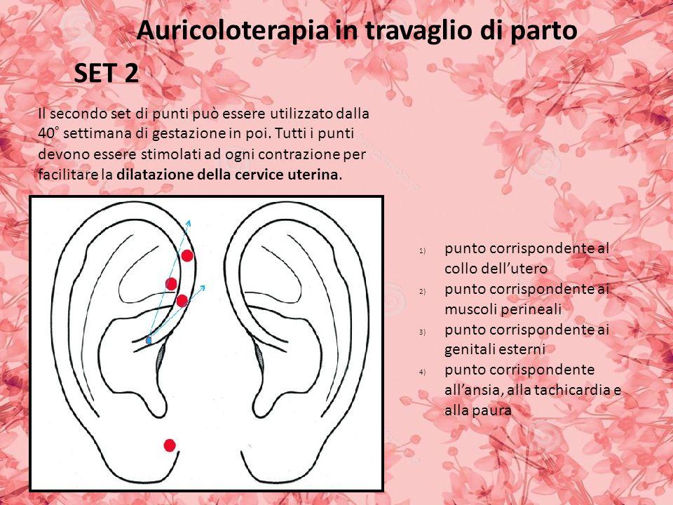 Auricoloterapia in travaglio di parto